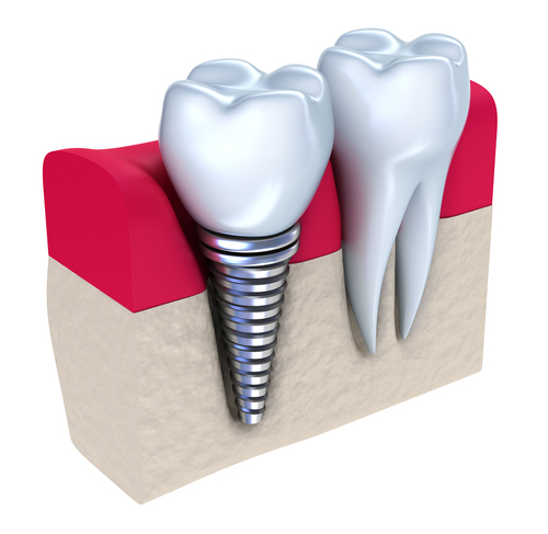 New research to reduce dental implant failure published