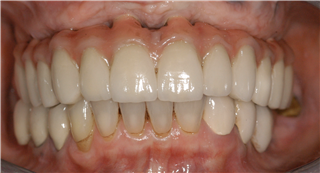 Figure 15   One year review intraoral (Mobile)