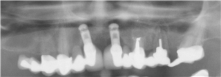 Figure 5   Pre treatment X ray showing upper arch (Mobile)
