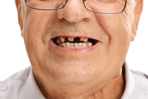 Tooth loss linked to frailty in older men