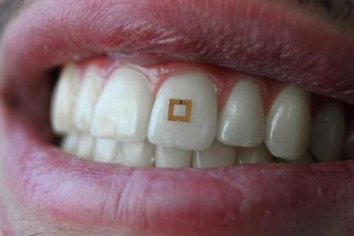 Tooth-mounted sensor can detect food content