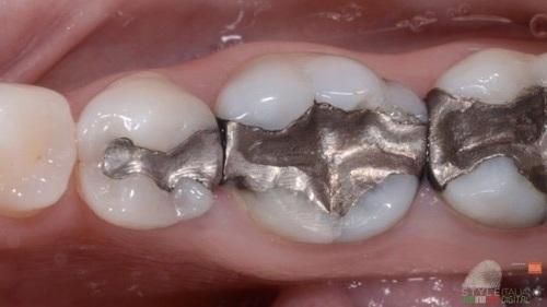 American Dental Association reaffirms its position on dental amalgam