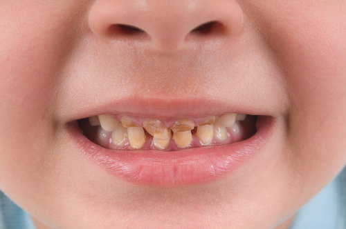 Dental attendance by under-1s improving since recent study says BSPD