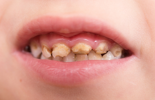 Dental caries and obesity must be tackled together, says BSPD