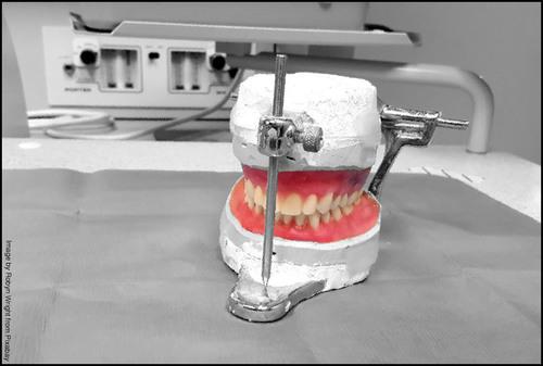 Dentures May Slow Cognitive Decline