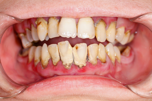 Covid restrictions on dentists threaten patients' oral health
