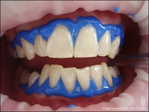 Zoom Boom For Cosmetic Dentistry