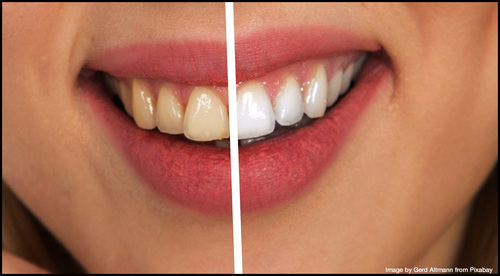 Illegal Tooth-Whitening Flourishing - Despite GDC's Successful Prosecutions