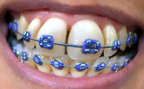 Orthodontic Breakthrough