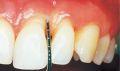 Half of U.S. adults have periodontal disease