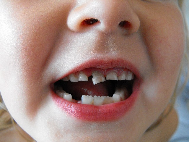 Tooth decay in children – why don't parents care?
