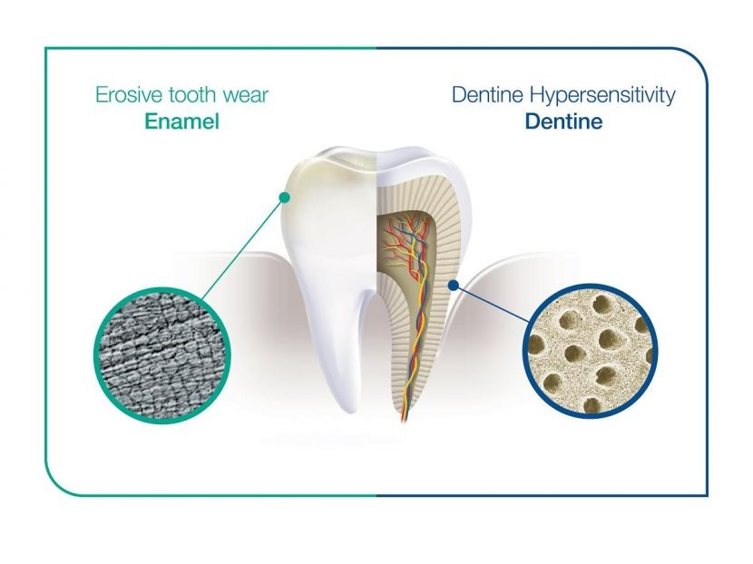 GSK champions erosive tooth wear and Dentine Hypersensitivity identification
