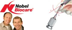 A Competitive Advantage | The Angulated Screw Channel from Nobel Biocare