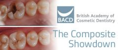 The Composite Showdown from the BACD