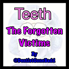 Teeth - the forgotten victims